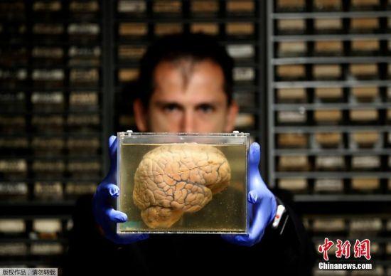 探秘比利时小镇精神病医院 陈列3千多颗人脑标本